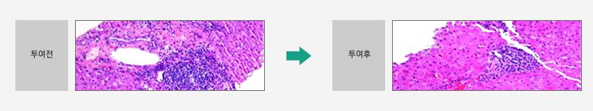 소시호탕의 간암전변 억제효과