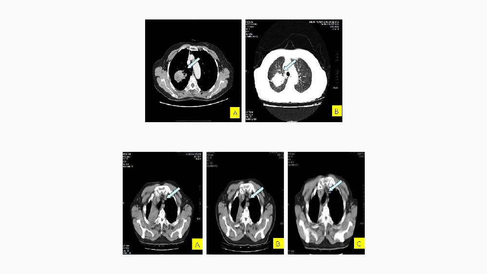 항암플러스의 비소세포폐암에 대한 효과 도표